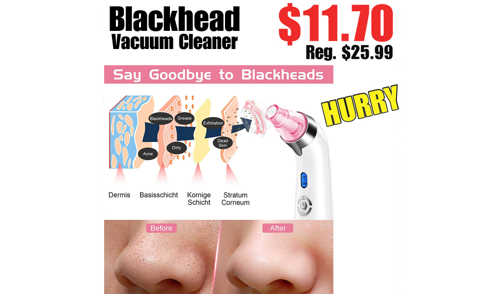 Blackhead Vacuum Cleaner Only $11.70 on Amazon (Regularly $25.99)